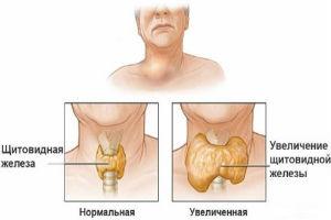 Щитовидная железа – лечение