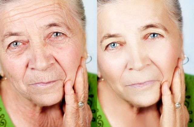 Сравнение лица до и после применения маски
