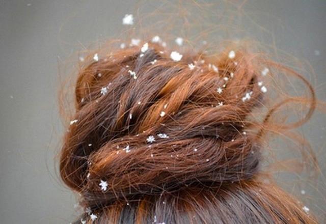 перхоть на женских волосах