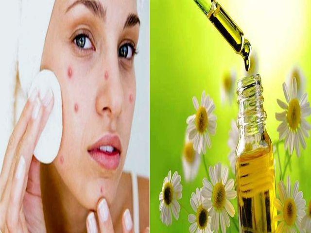 Ромашка — лечебные свойства и противопоказания применения для женщин, мужчин и детей